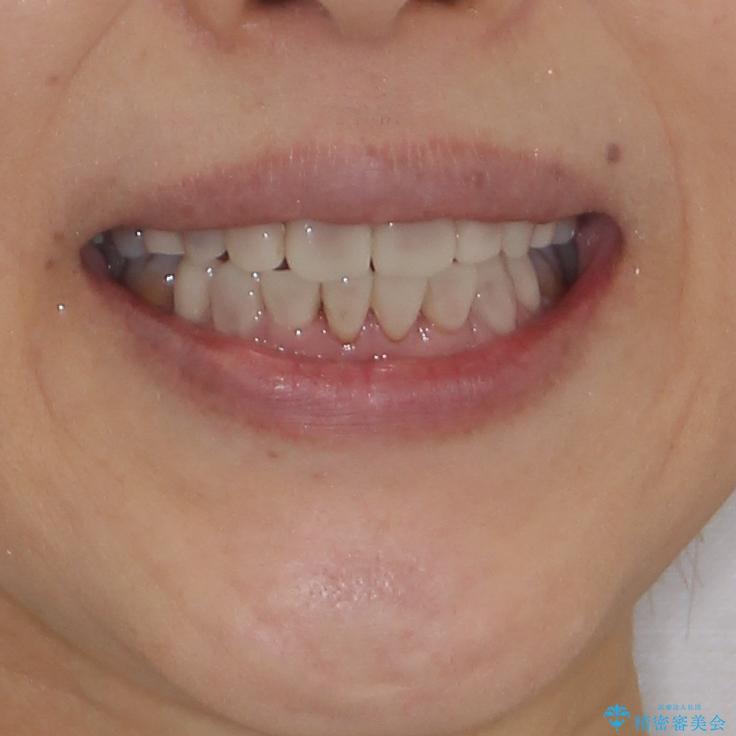 矯正の後戻りと変色歯を治したい 総合歯科診療の治療後(顔貌)