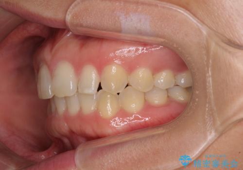 前歯の歯並びと小さい歯を改善 インビザラインとオールセラミッククラウンの治療中