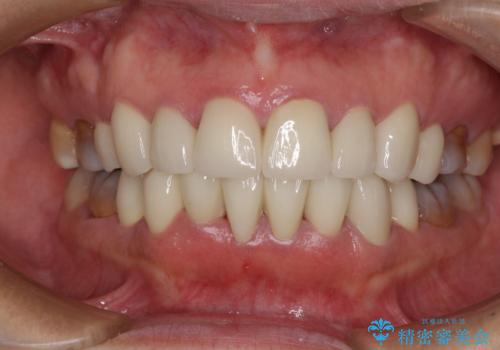 矯正の後戻りと変色歯を治したい 総合歯科診療の症例 治療後