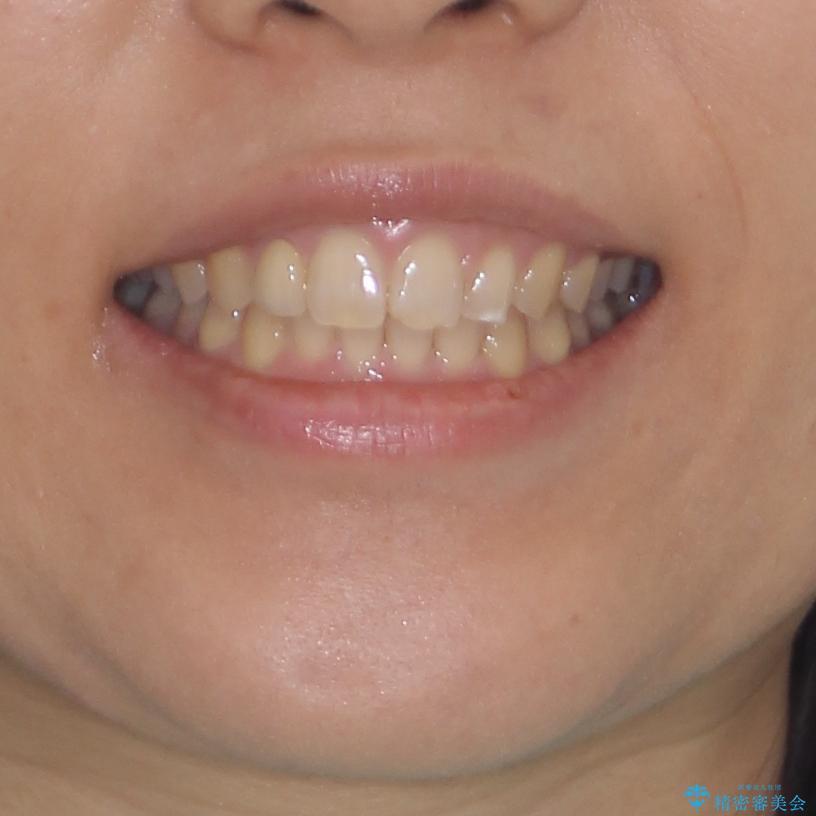 前歯の歯並びと小さい歯を改善 インビザラインとオールセラミッククラウンの治療後(顔貌)