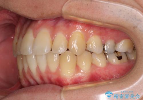 前歯のクロスバイトをインビザラインで矯正治療の治療中