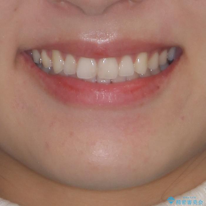上下の八重歯を治したい 補助装置を用いたインビザライン矯正の治療後(顔貌)