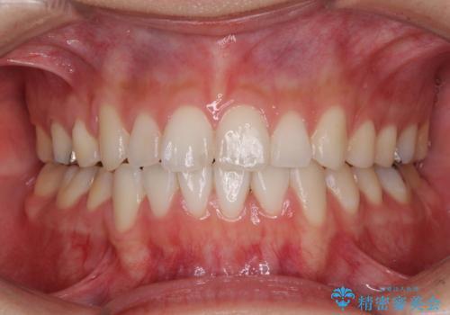上下の八重歯を治したい 補助装置を用いたインビザライン矯正の症例 治療後