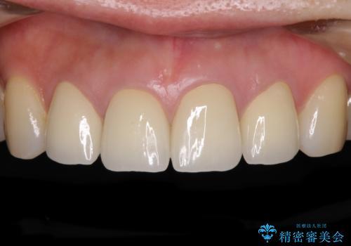 変色した歯をセラミックできれいにの症例 治療後