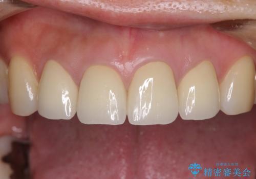 変色した歯をセラミックできれいにの治療後