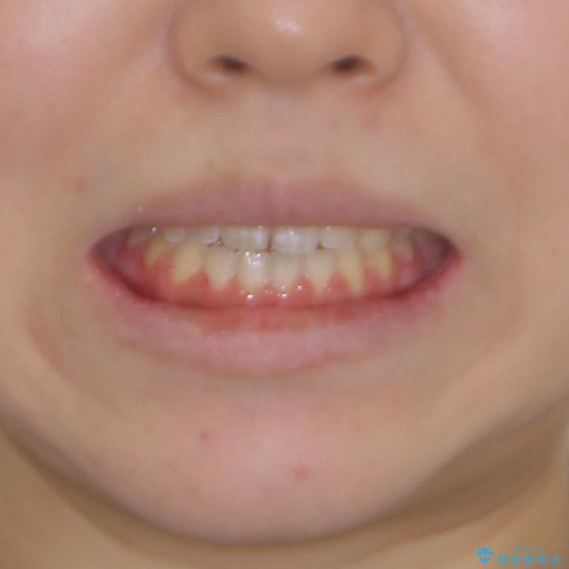外科矯正は受けたくない 上顎骨拡大による妥協的な受け口治療の治療後(顔貌)