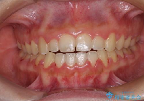 外科矯正は受けたくない 上顎骨拡大による妥協的な受け口治療の症例 治療後