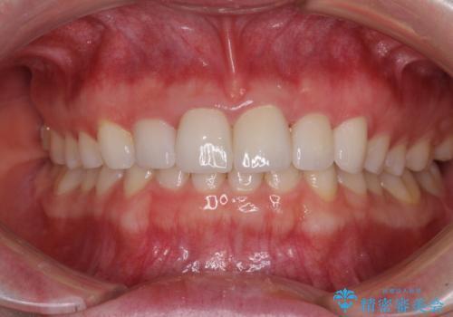 気になる前歯を美しく マウスピース矯正とセラミッククラウンの症例 治療後