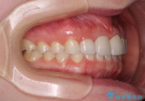 気になる前歯を美しく マウスピース矯正とセラミッククラウンの治療後