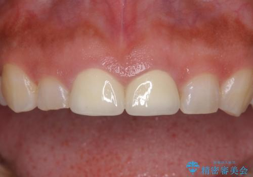 長さの気になる変色した前歯をオールセラミッククラウンにの治療後