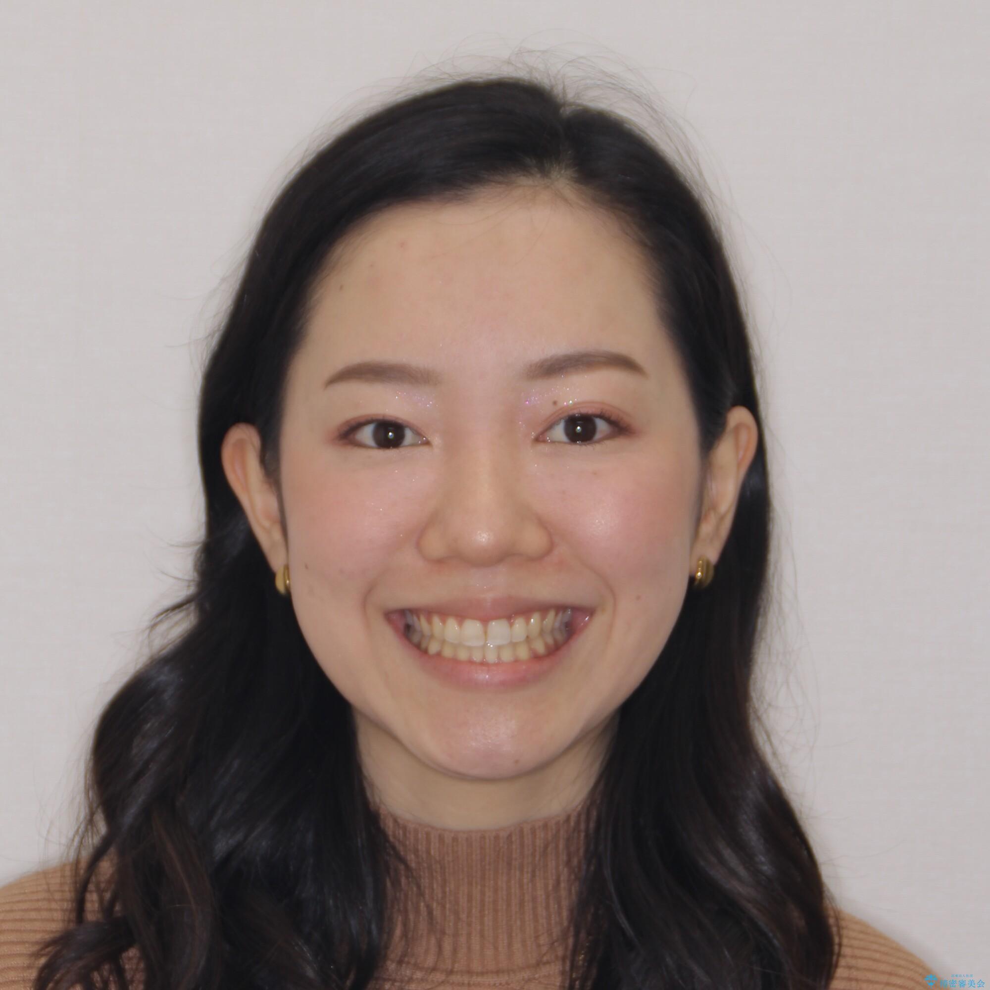 【モニター】オープンバイトをインビザラインで矯正治療の治療後(顔貌)