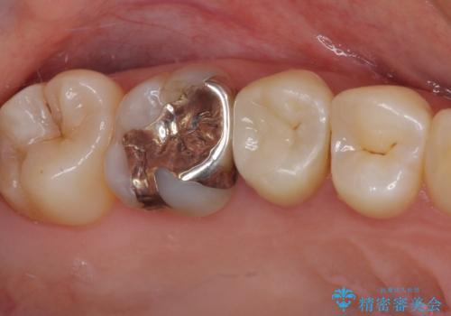 虫歯がしみる セラミックインレーによる修復治療の治療後