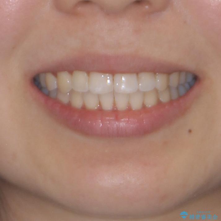前歯のデコボコが気になる インビザラインによる矯正治療の治療後(顔貌)