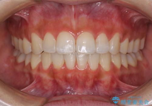 前歯のデコボコが気になる インビザラインによる矯正治療の症例 治療後