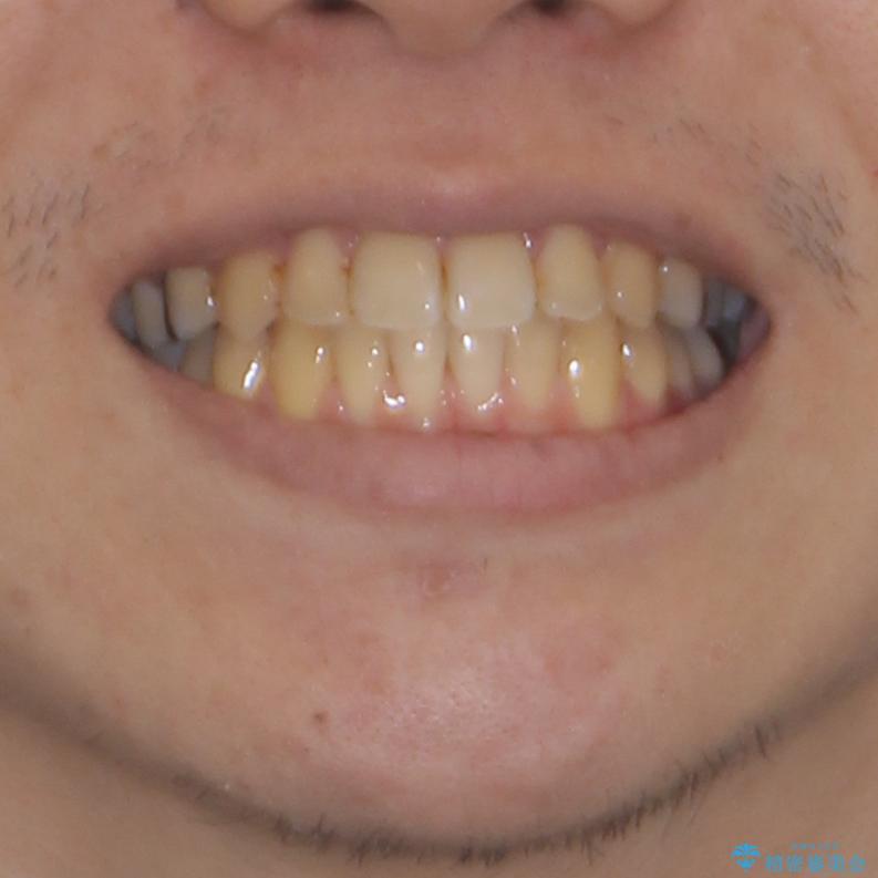 前歯のクロスバイトをインビザラインで矯正治療の治療後(顔貌)