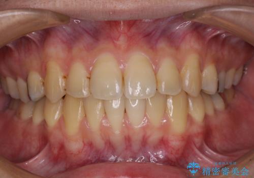 前歯のクロスバイトをインビザラインで矯正治療の症例 治療後
