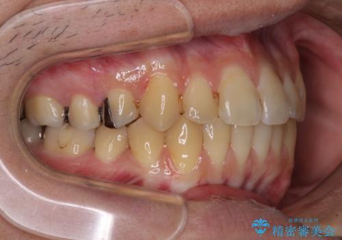 前歯のクロスバイトをインビザラインで矯正治療の治療後