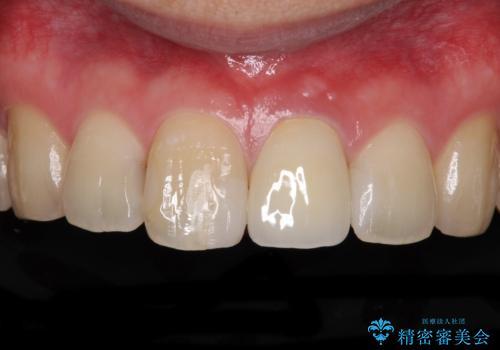 前歯の変色が気になる オールセラミッククラウンによる審美歯科治療の症例 治療後