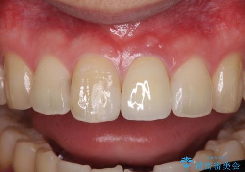 前歯の変色が気になる オールセラミッククラウンによる審美歯科治療の治療後