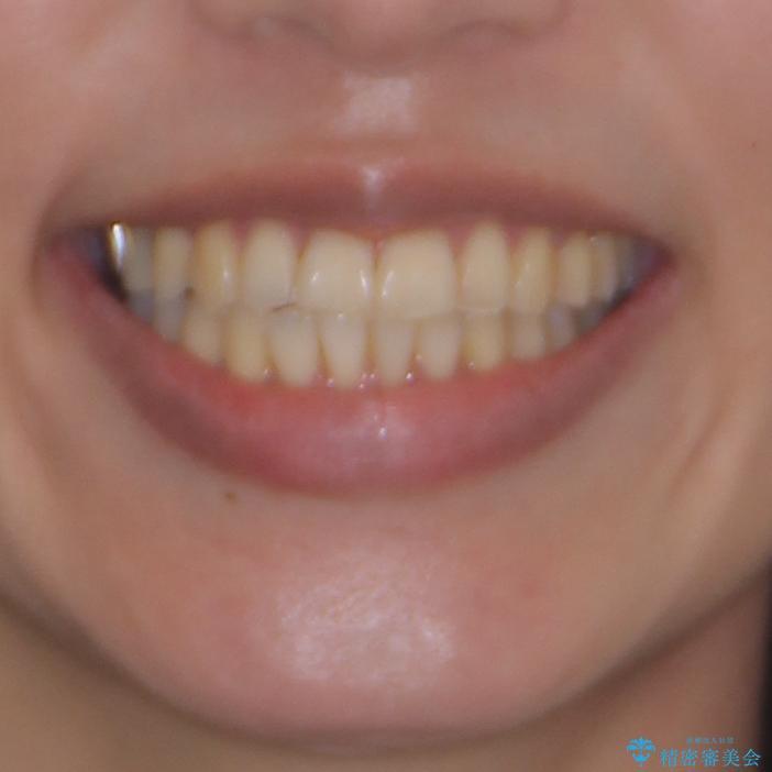 切端咬合をインビザライン矯正で解消の治療後(顔貌)
