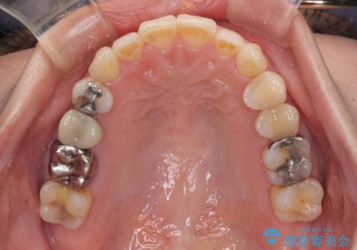 切端咬合をインビザライン矯正で解消の治療後