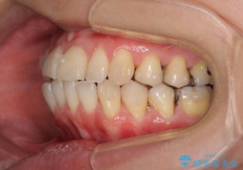 切端咬合をインビザライン矯正で解消の治療中