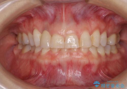歯肉が腫れている前歯 外科処置を併用したオールセラミッククラウンの治療後
