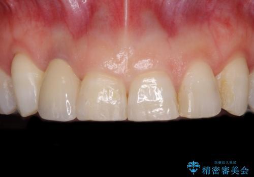 歯肉が腫れている前歯 外科処置を併用したオールセラミッククラウンの症例 治療後