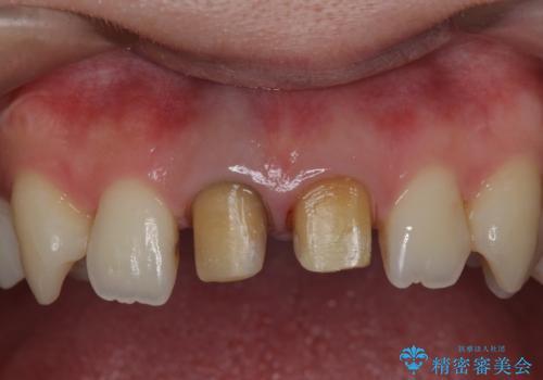 神経をとった前歯が変色してきたの治療中