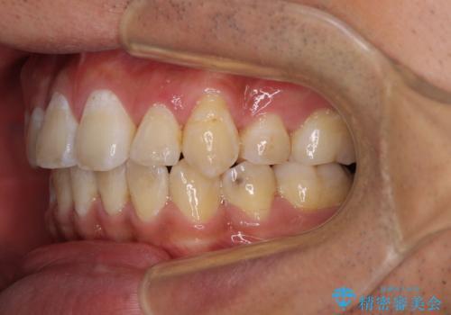 前歯の叢生を解消 ワイヤー装置での抜歯矯正の治療後