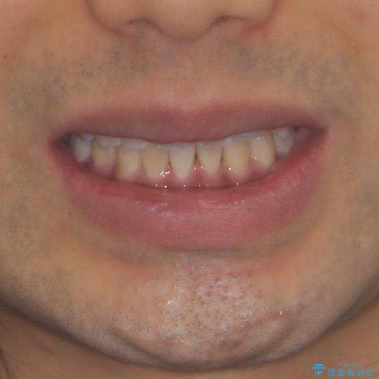 前歯の叢生を解消 ワイヤー装置での抜歯矯正の治療後(顔貌)