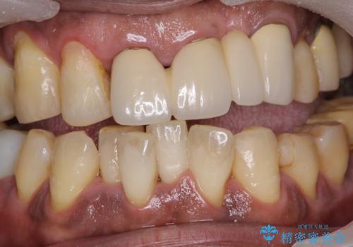 ホワイトニング予定の方のPMTC まずはステイン除去の治療前
