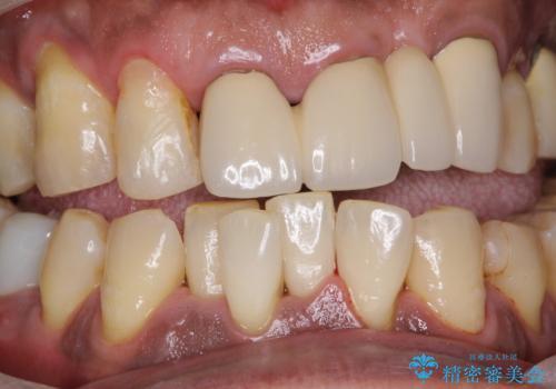 ホワイトニング予定の方のPMTC まずはステイン除去の治療後