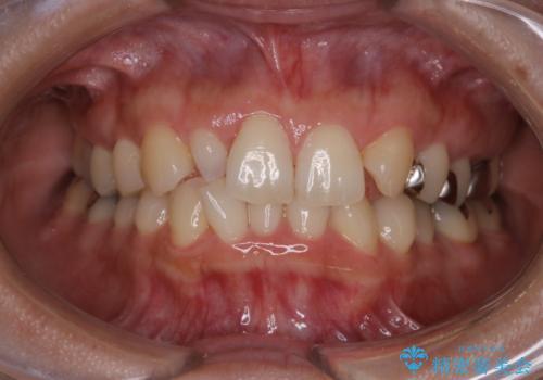笑うとキラリと光る銀歯を何とかしたい:適合の良いセラミックで長持ちする歯にの症例 治療前