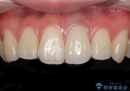 境目が見えている前歯のクラウンをオールセラミッククラウンにの症例 治療後