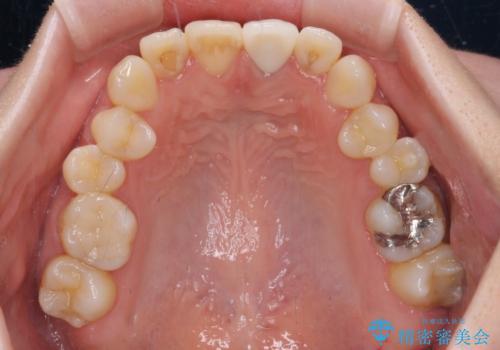 境目が見えている前歯のクラウンをオールセラミッククラウンにの治療後