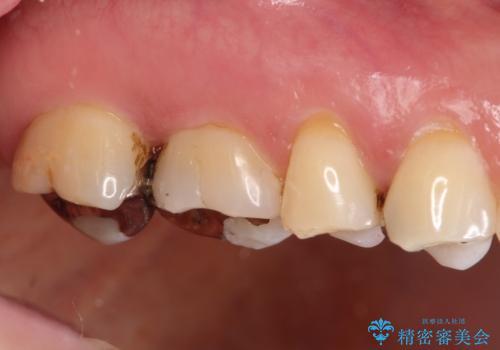 銀歯が外れてしまった ゴールドインレーによる補綴治療の治療後