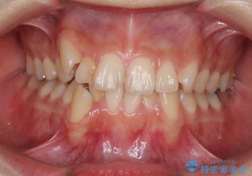 上下の八重歯を治したい 補助装置を用いたインビザライン矯正の症例 治療前