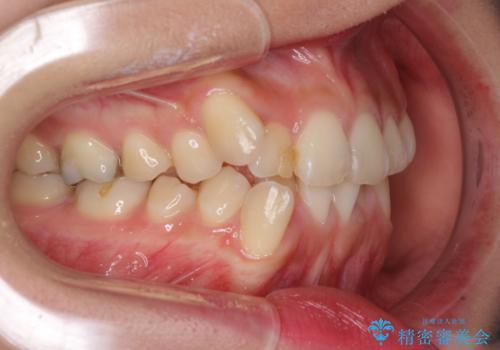上下の八重歯を治したい 補助装置を用いたインビザライン矯正の治療前