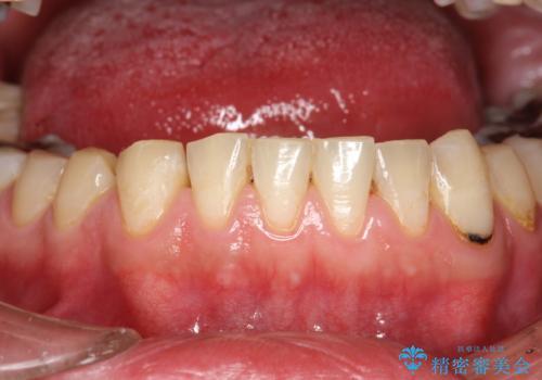 歯医者で口臭予防 PMTCの治療後