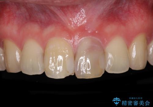 前歯の変色が気になる オールセラミッククラウンによる審美歯科治療の症例 治療前