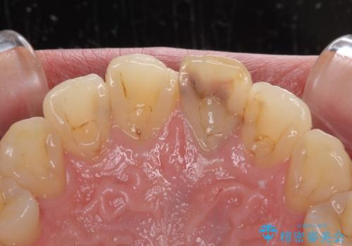 前歯の変色が気になる オールセラミッククラウンによる審美歯科治療の治療前