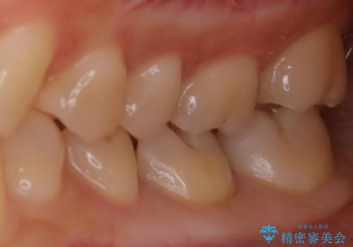 適合のよいセラミックで自分の歯となじむ自然な仕上がりにの治療中
