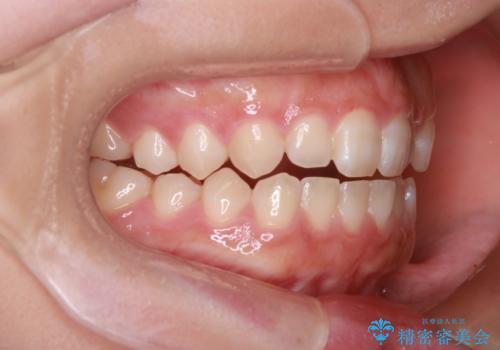 【開咬】短期間でインビザライン矯正の治療前