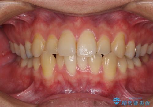前歯のクロスバイトをインビザラインで矯正治療の症例 治療前