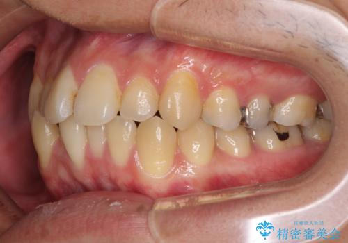 前歯のクロスバイトをインビザラインで矯正治療の治療前