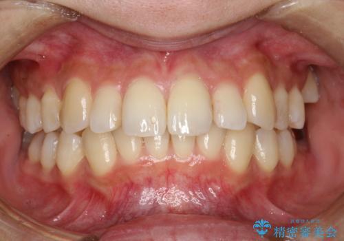 歯の着色・ステイン・ザラつき除去をPMTCでの治療前