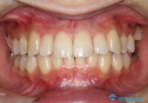 歯の着色・ステイン・ザラつき除去をPMTCでの治療後