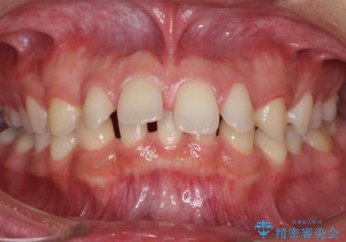 すきっ歯・出っ歯 コンプレックスの前歯を治したい 目立たない方法で セラミック治療は不可能な症例の症例 治療前