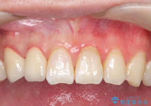 オールセラミッククラウン 色・形が気になる前歯の改善の症例 治療後